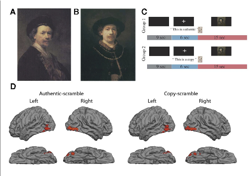 "The first thing the researchers discovered is that there was no detectable difference in the response of visual areas to Rembrandt and ""school of Rembrandt"" works of art. The key word in that sentence is ""detectable"": fMRI remains a crude tool, and just because it can't pinpoint a significant difference between groups (especially given these limited sample sizes) doesn't mean there is none. That said, it's not exactly surprising that such similar paintings would elicit virtually identical sensory responses. It takes years of training before critics can reliably discern real Rembrandt from copies. And even then there is often extensive disagreement, as the 1995 Metropolitan show demonstrates. However, the scientists did locate a pattern of activity that appeared whenever a painting was deemed to be authentic, regardless of whether or not it was actually ""real."" In such instances, subjects showed a spike in activity in the orbitofrontal cortex, a chunk of brain just behind the eyes that is often associated with perceptions of reward, pleasure and monetary gain. (According to the scientists, this activation reflects ""the increase in the perceived value of the artwork."") Interestingly, there was no difference in orbitofrontal response when the stamp of authenticity was applied to a fake Rembrandt, as the brain area responded just as robustly. The quality of art seemed to be irrelevant."